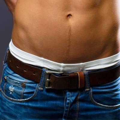 pénisz férfiaknál mit kell tenni a pénisz vastagságát növelő mellékletek