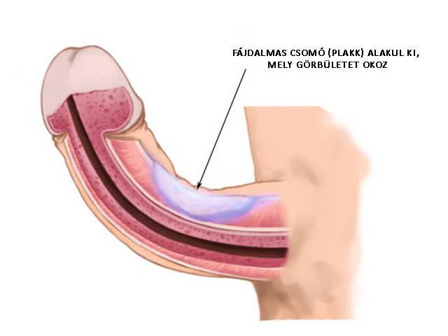 pénisz hogyan lehet gyógyítani a görbületet kis pénisz hogyan lehet javítani