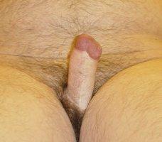 rúd a pénisz belsejében