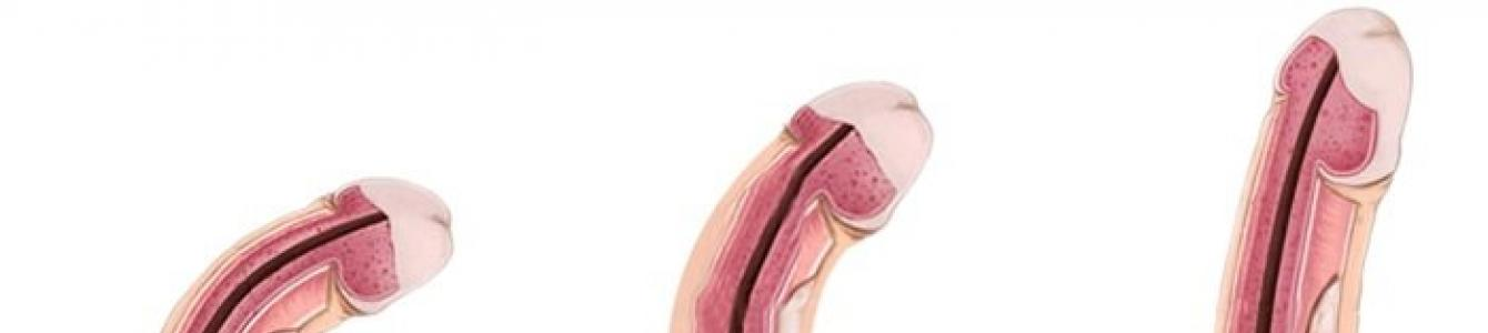 típusú pénisz az erekcióban vitaminok az erekció elősegítésére