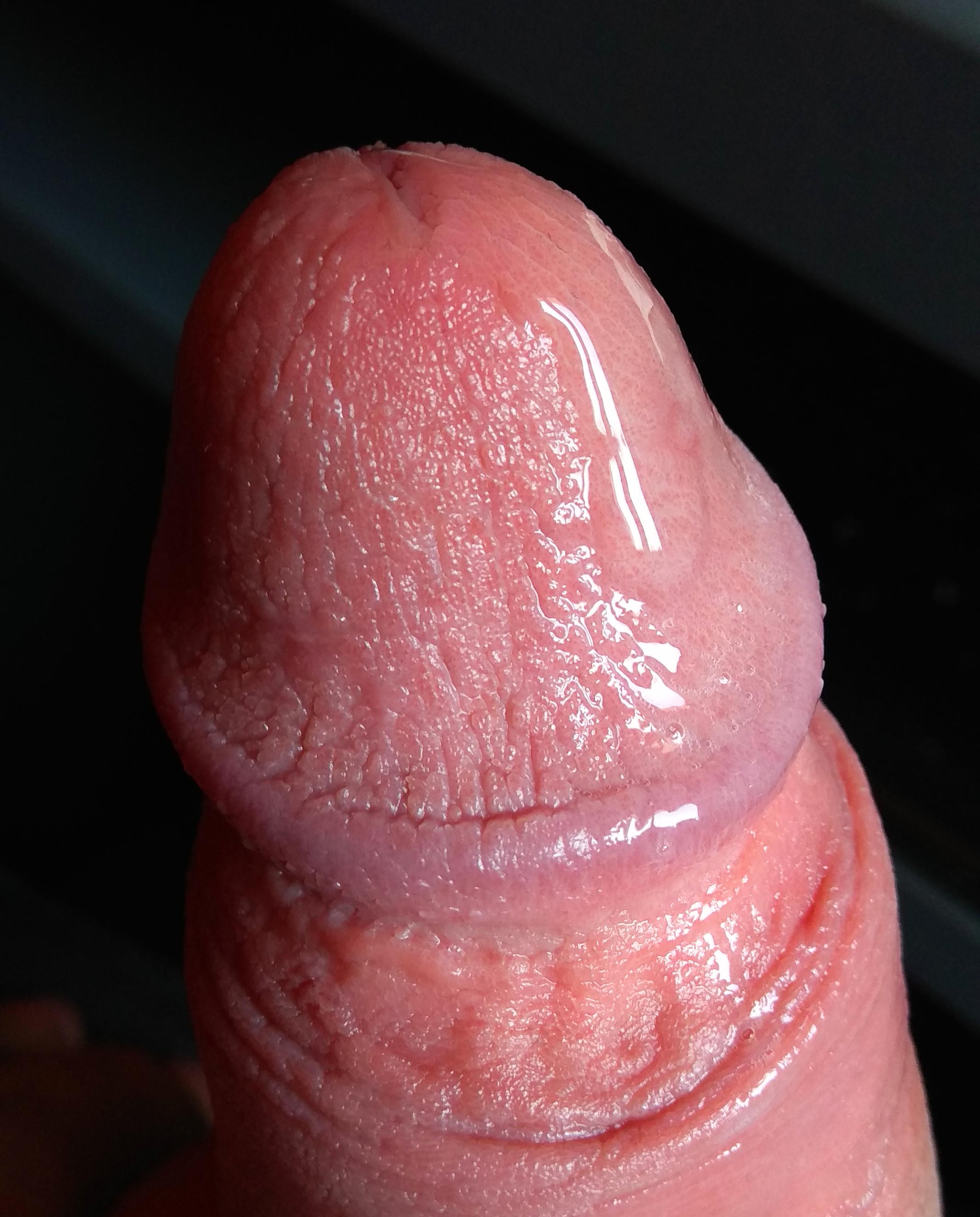 férfi pénisz erekció