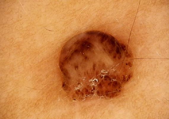 vesz egy vákuumszivattyút a pénisz megnagyobbodásához a legújabb a pénisz megnagyobbodásában