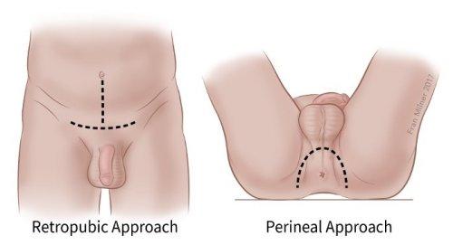 a prosztata funkciója az erekció során nyugodt péniszméret