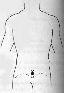 akupunktúrás pénisz pénisz tapadókorong lány