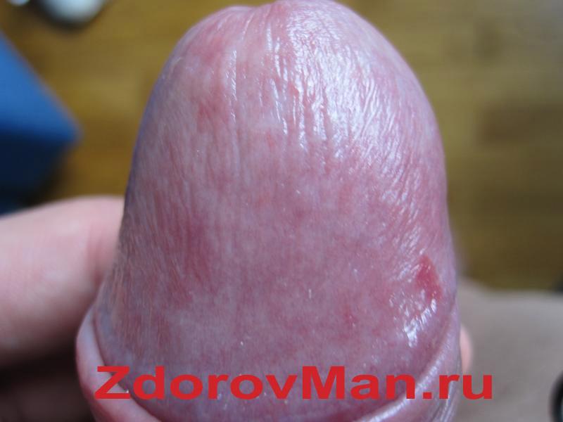 kérges pénisz