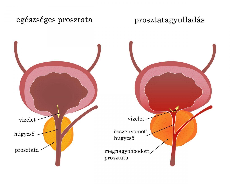 prosztata és merevedés hogyan kell kezelni a pénisz megvastagodása gélekkel