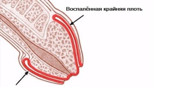 vörös pontok a fején az erekció során