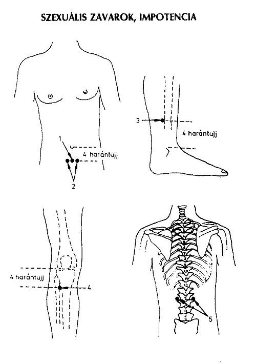 akupresszúrás erekció