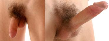 péniszek az erekció előtt és után