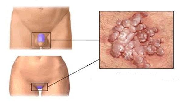 nemi szervi betegségek a péniszen gyógynövényes infúziók férfiak erekciójára