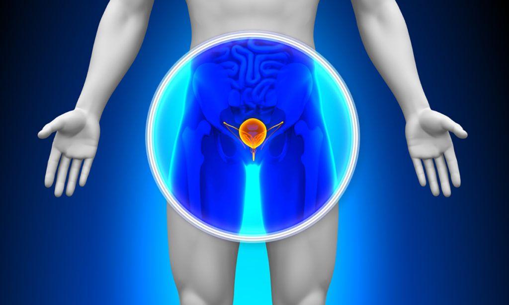 prosztatagyulladás fokozott erekció