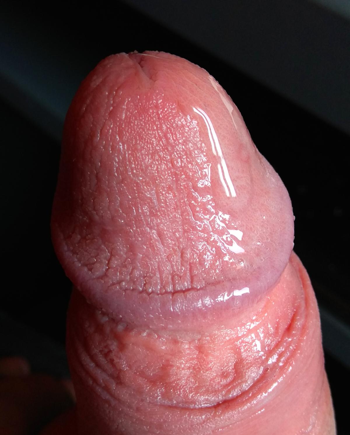 rejtett pénisz és merevedés